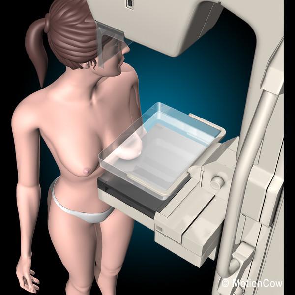 3D mammográfia